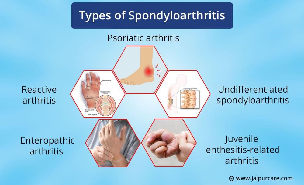 Spondyloarthritis Treatment Near Me