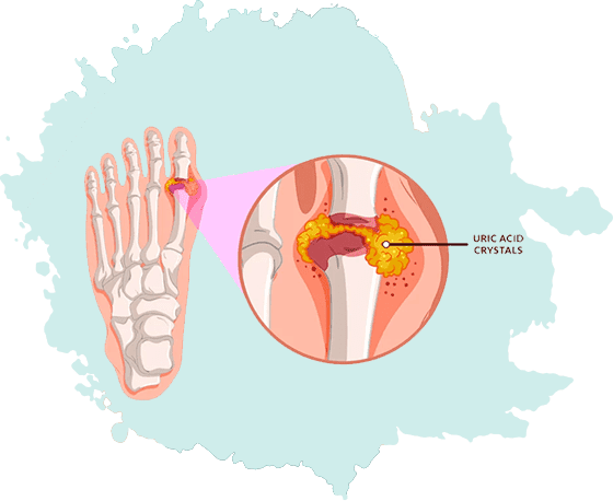 Gout Treatment in Jaipur