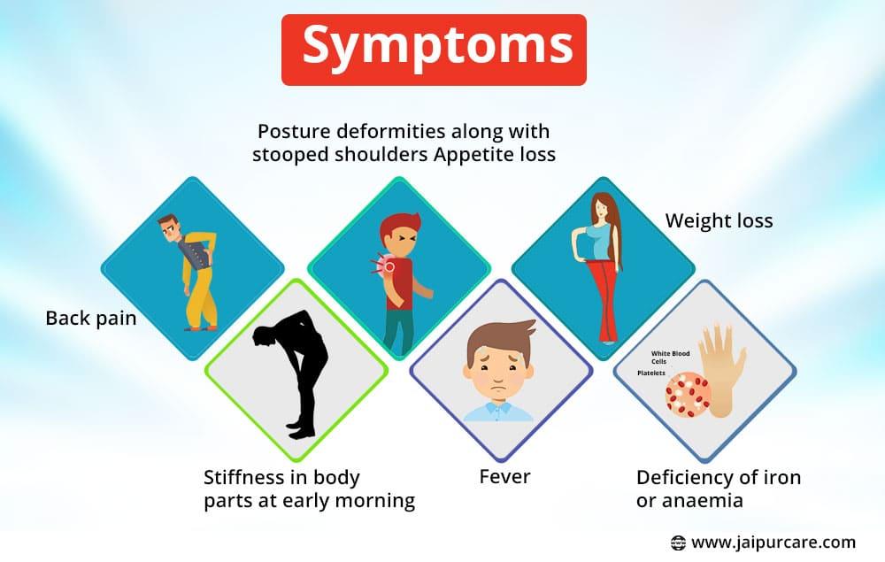 Symptoms of Ankylosing Spondylitis