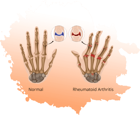 Rheumatoid Arthritis Treatment in Jaipur