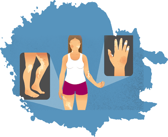 Systemic Sclerosis Treatment in Jaipur
