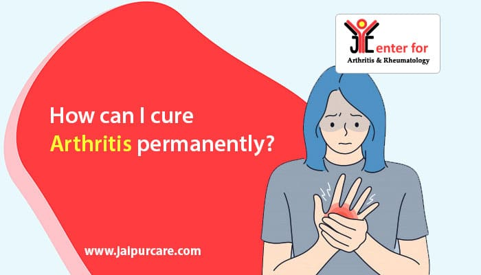 How can I cure arthritis permanently?