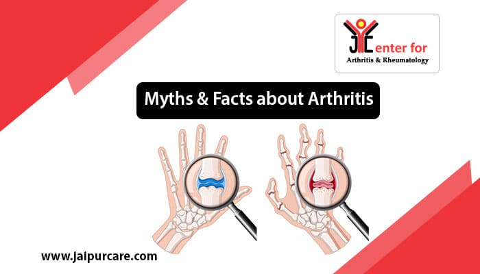 Myths & Facts about Arthritis