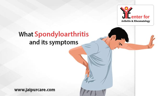 What Is Spondyloarthritis And Its Symptoms?