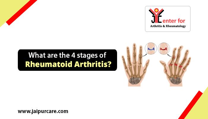 4 stages of Rheumatoid Arthritis