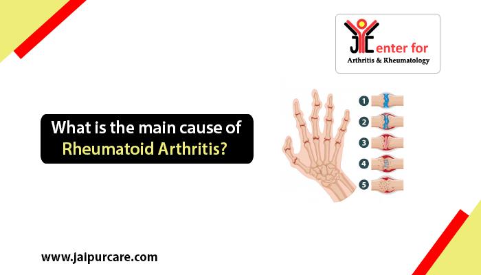 cause of rheumatoid arthritis