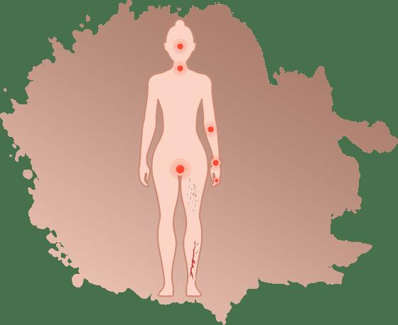 Sjogren's Syndrome Treatment in Jaipur