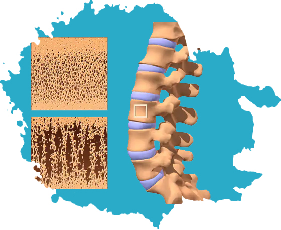 Osteoporosis and Metabolic Bone Diseases: Causes, Symptoms, Prevention